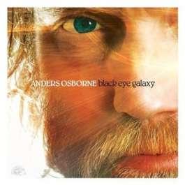 Black Eye Galaxy Osbourne Anders